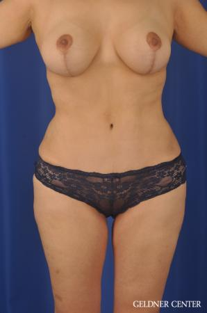 Lipoabdominoplasty: Patient 7 - After Image