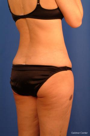 Vaser lipo patient 2520 before and after photos -  After Image 3