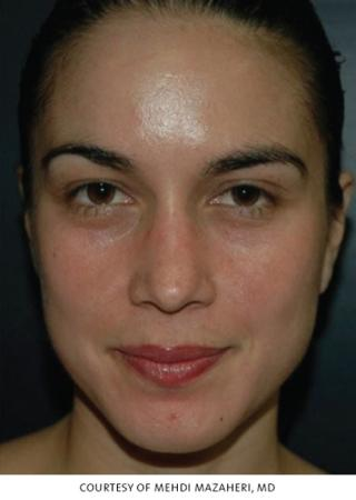 Chicago VI Peel chemical peel patient 2314 before and after photos -  After Image 1