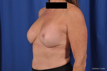 Breast Lift: Patient 43 - After Image 5