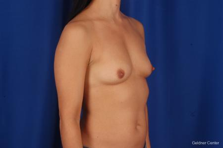Breast Augmentation Hinsdale, Chicago 2299 - Before Image 3