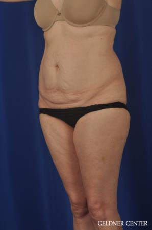 Liposuction: Patient 33 - Before and After 5