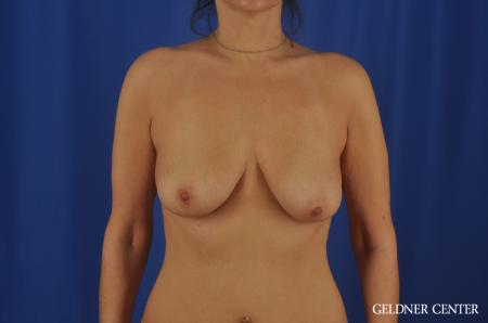 Chicago Breast Lift 11866 - Before Image 1