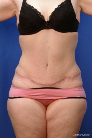 Tummy Tuck: Patient 10 - After Image 1