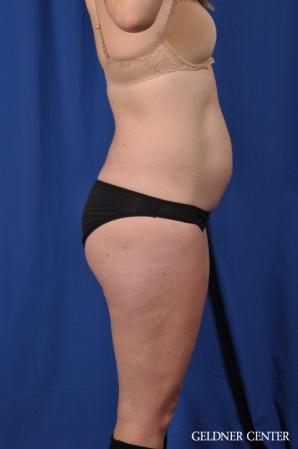 Liposuction: Patient 48 - Before 3