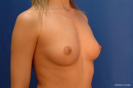 Chicago Breast Augmentation 2523 - Before Image 3