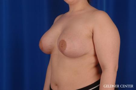 Chicago Complex Breast Augmentation 2616 -  After Image 5
