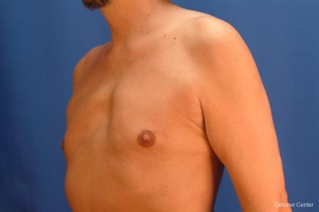 Gynecomastia: Patient 6 - After Image 4