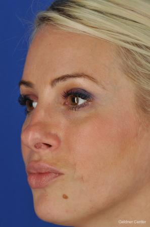 Chicago Rhinoplasty - Before and After Image 4