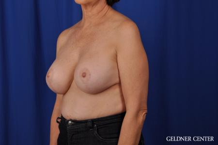 Chicago Breast Augmentation 4285 -  After Image 4
