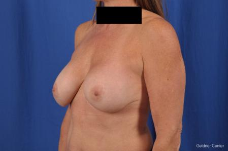 Complex Breast Augmentation: Patient 35 - Before and After Image 5