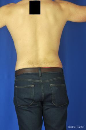 Liposuction For Men: Patient 4 - After Image 4