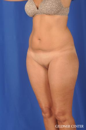 Liposuction: Patient 47 - Before and After Image 5