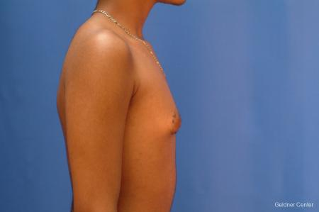 Gynecomastia: Patient 5 - Before Image 2