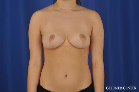 Chicago Breast Reduction 8752 - After Image