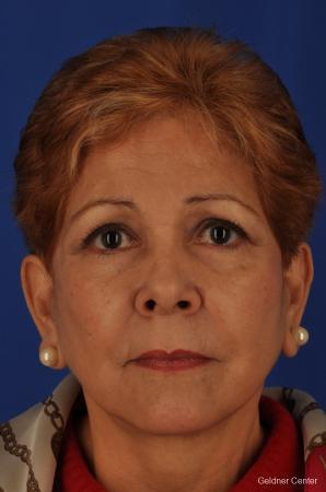 Neck Lift: Patient 1 - After Image