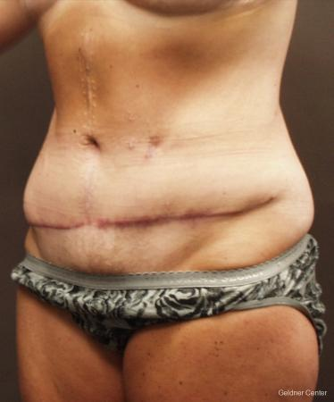 Liposuction: Patient 16 - Before and After Image 4