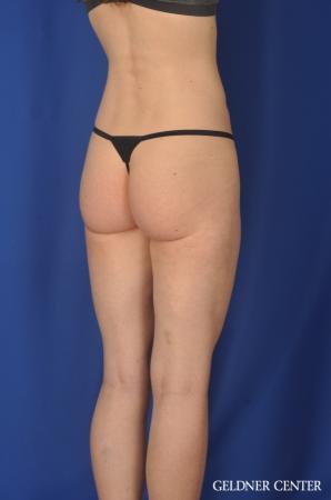Liposuction: Patient 36 - After Image 4