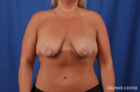 Breast Lift: Patient 41 - Before Image 1