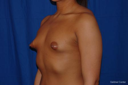 Breast Augmentation: Patient 156 - Before and After Image 4