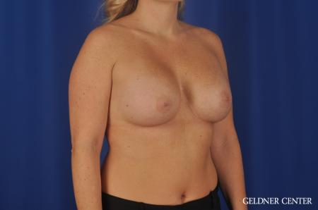 Breast Augmentation Lake Shore Dr, Chicago 5469 -  After Image 2