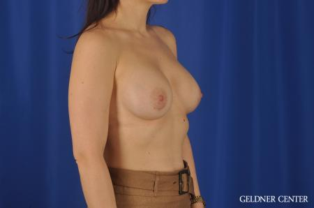 Chicago Breast Augmentation 8760 -  After Image 3