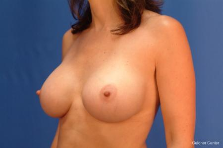 Breast Augmentation Streeterville, Chicago 2437 -  After Image 4