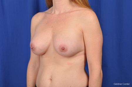 Breast Augmentation Hinsdale, Chicago 2531 -  After Image 5