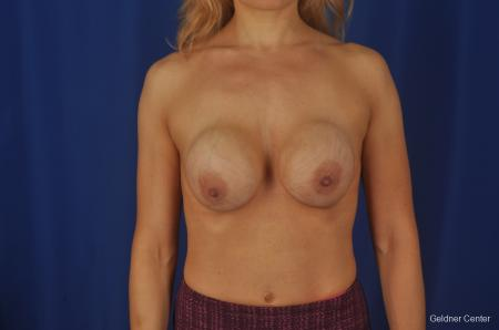 Chicago Complex Breast Augmentation 2073 - Before Image