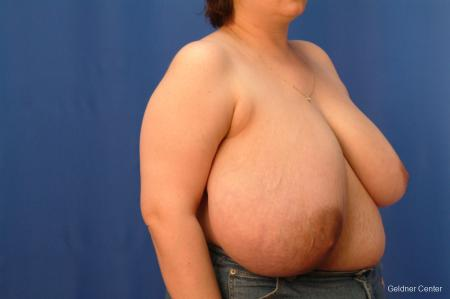 Breast Reduction Streeterville, Chicago 2522 - Before Image 3