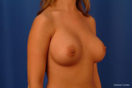 Breast Augmentation Lake Shore Dr, Chicago 2533 -  After Image 3