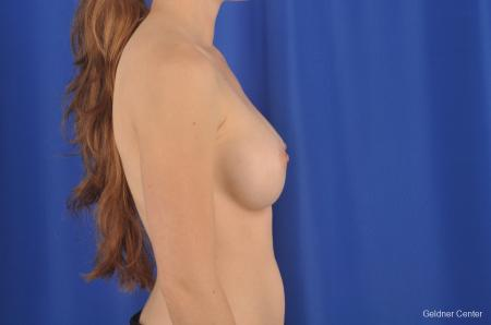 Chicago Breast Augmentation 2304 -  After Image 2