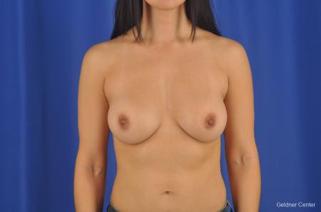 Breast Augmentation Hinsdale, Chicago 2299 -  After Image 1