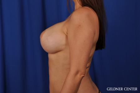 Complex Breast Augmentation Hinsdale, Chicago 5544 -  After Image 5
