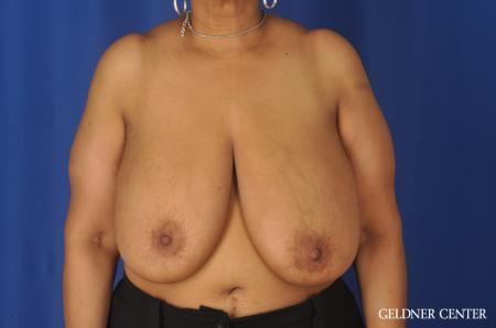 Breast Reduction: Patient 25 - Before Image 1