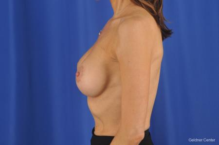 Breast Augmentation Lake Shore Dr, Chicago 2295 -  After Image 4