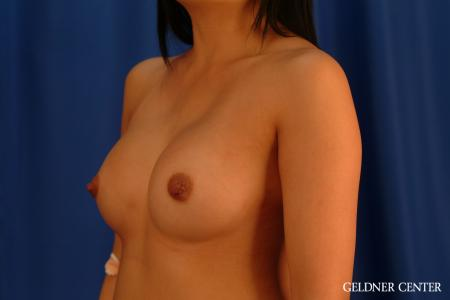 Breast Augmentation: Patient 163 - After Image 4