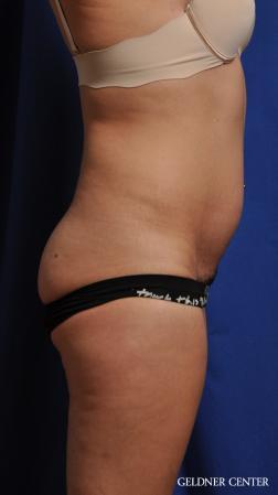 Liposuction: Patient 41 - Before Image 3
