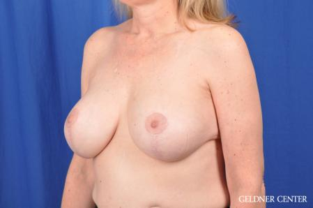 Breast Augmentation: Patient 167 - After Image 4
