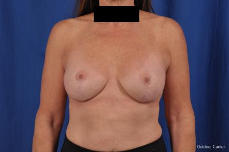 Breast Lift: Patient 43 - After Image 1