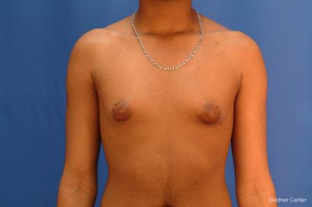 Gynecomastia: Patient 5 - Before Image