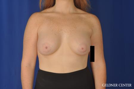 Breast Augmentation Streeterville, Chicago 11870 -  After Image 1