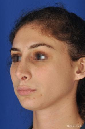 Rhinoplasty: Patient 4 - After Image 4