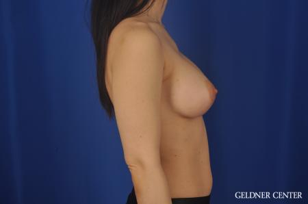Chicago Breast Lift 5473 -  After Image 3