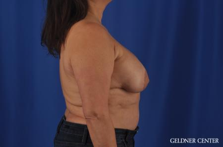 Breast Lift Hinsdale, Chicago 11863 - Before Image 3