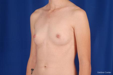 Chicago Breast Augmentation 2304 - Before and After Image 4