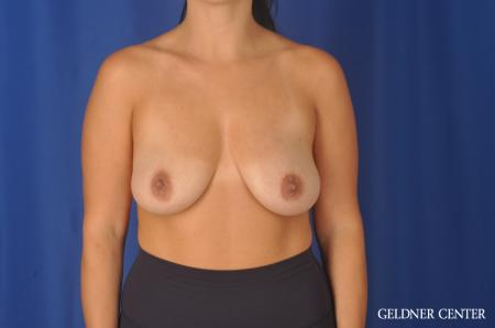 Breast Lift: Patient 23 - Before 1