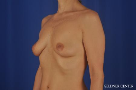 Breast Lift Lake Shore Dr, Chicago 6649 -  After Image 3