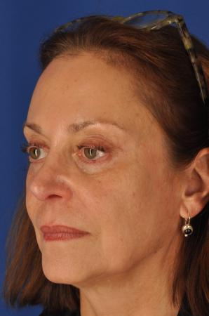 Facelift: Patient 7 - Before and After Image 4