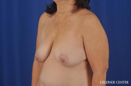 Breast Lift Hinsdale, Chicago 3232 - Before and After Image 4